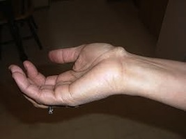 Milton Keynes cosmetic surgeon Mr Sudip Ghosh explains what a ganglion cyst is