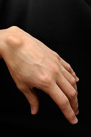 Ganglion removal