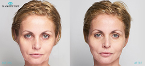 Silhouette Soft Facelift Before and After